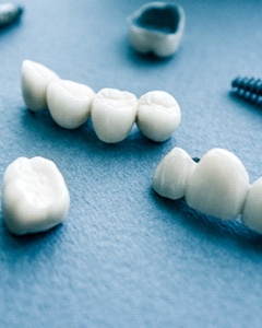 dental crowns, bridges, and implants