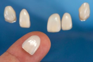 porcelain veneers in Allentown