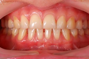 person smiling healthy gums exposed