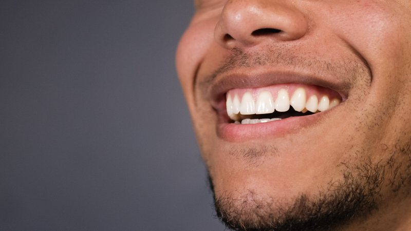 Man smiling after fluoride treatment